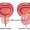 الأسبرين لجنب سرطان البروستات